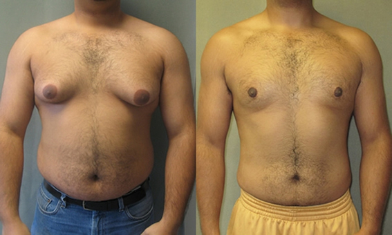 Gynecomastia - before and after surgery