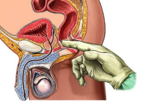 hepatocholecystitis