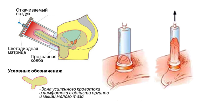 Receptek Ivan Tea Prostatitis